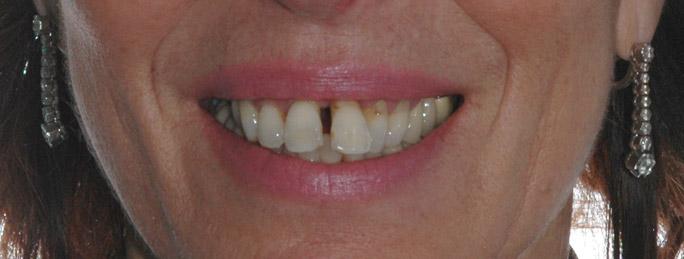 parodontologia1aa