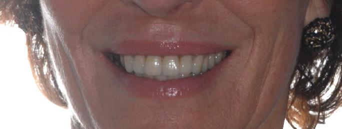 parodontologia1bb