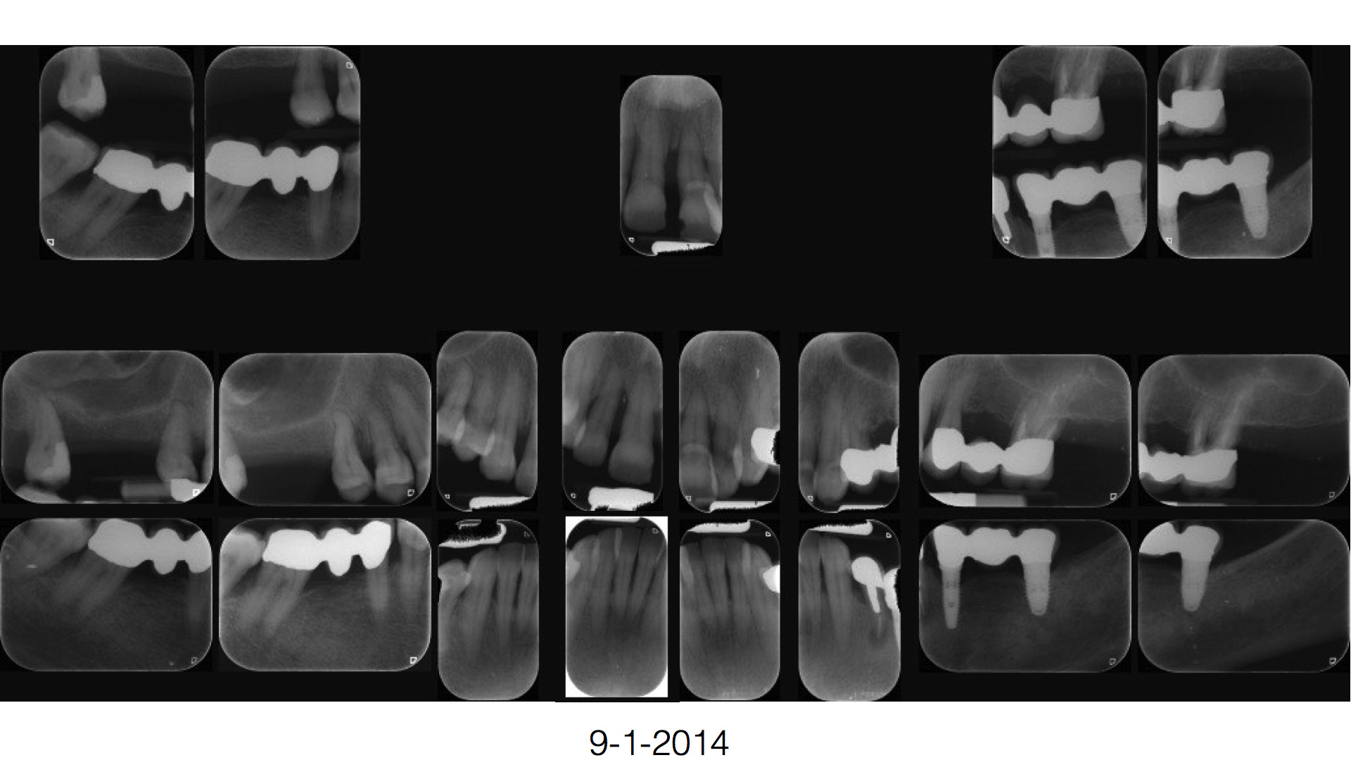 parodontologia1g